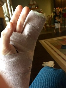 Broken metacarpal